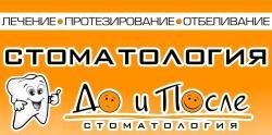 """Стоматологическая клиника """"ДО И ПОСЛЕ"""""""