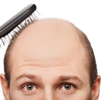 Пересадка волос со скидкой