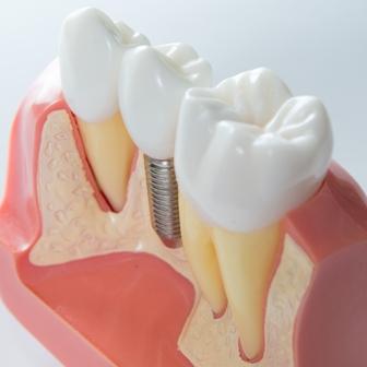 Лечение зубов по программе ЕНПФ