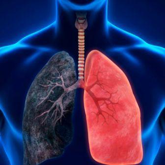 Всемирный день борьбы с хроническими обструктивными заболеваниями легких