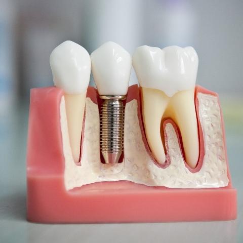 Выгодные цены на имплантацию зубов!