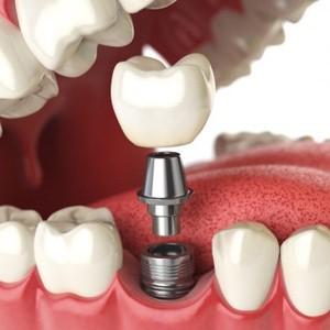 Подарок 15 000 тг на имплантант зуба