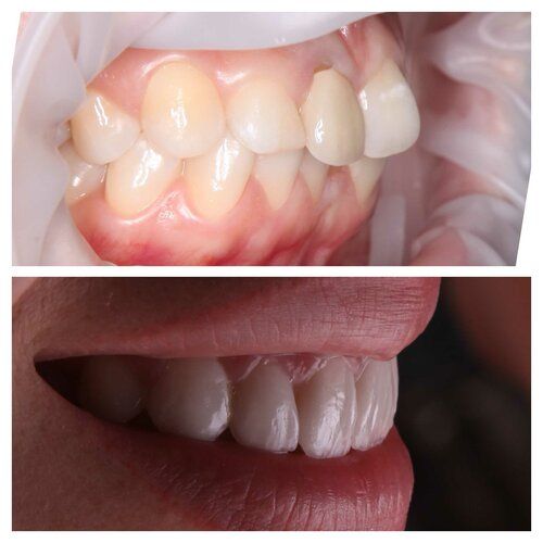 """Стоматологическая клиника """"Chilаnzаr Dental Servis"""""""