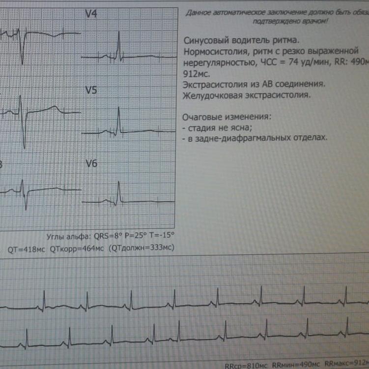 В Городской больнице  №4 результаты ЭКГ теперь расшифровывает необычный новый