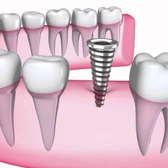 Корейские зубные имплантаты - 80 600 тг