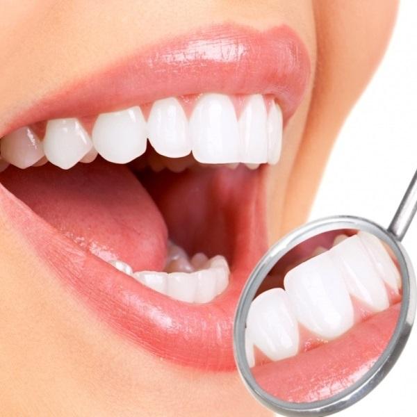 Чистка зубов методом  Air Flow - 10 000 тг