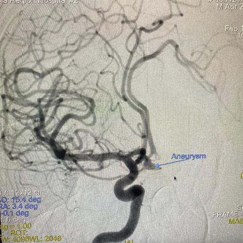 Эндоваскулярное лечение сосудистых заболеваний головного мозга в МОБ 2.