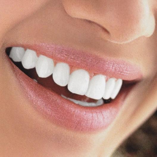 Отбеливание и ультразвуковая чистка зубов - 25 000 тг!