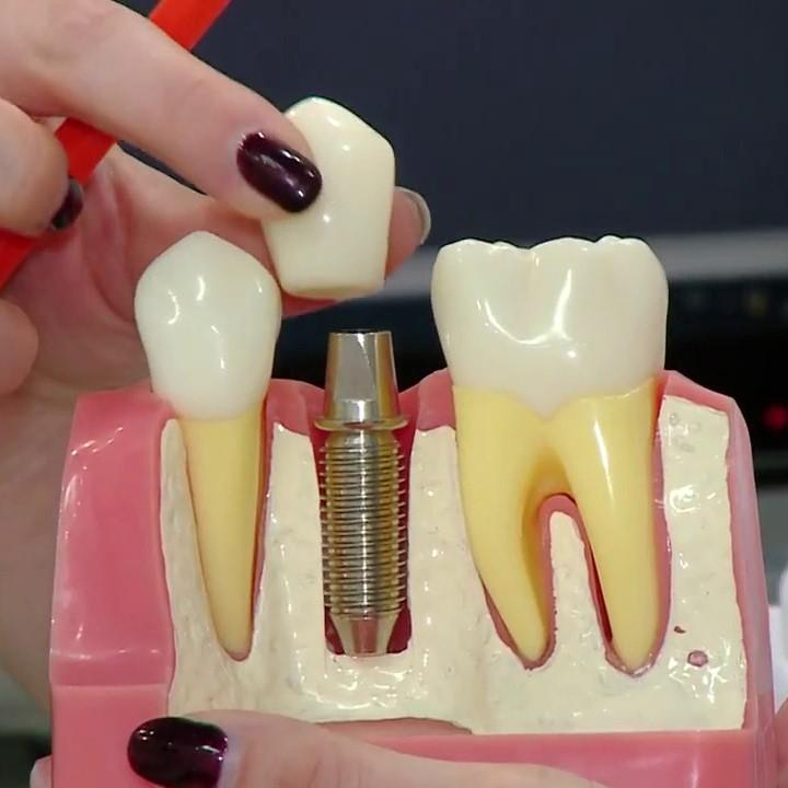 Имплантация зубов - 70 000 вместо 105 000 тг