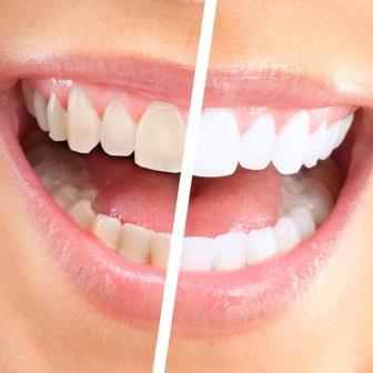 Профессиональное отбеливание зубов: 15 000 тг