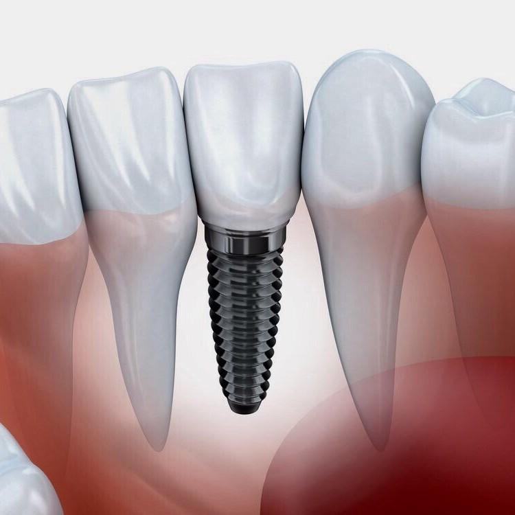 Суперцена на импланты зубов - 70 000 тг!