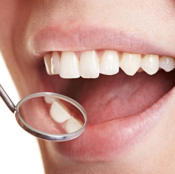 Чистка зубов - 15 000 тг вместо 30 000 тг!