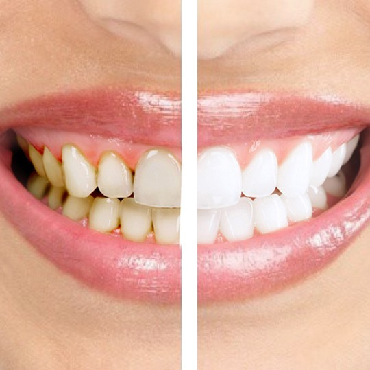 Профессиональная чистка зубов в 3 раза дешевле!